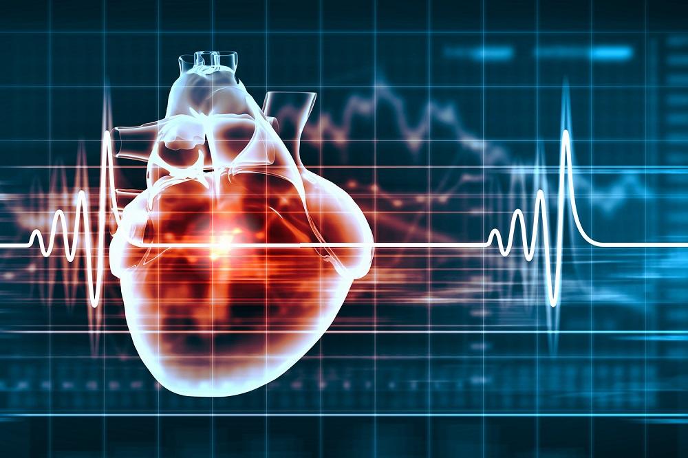 Cardiologia reduzido